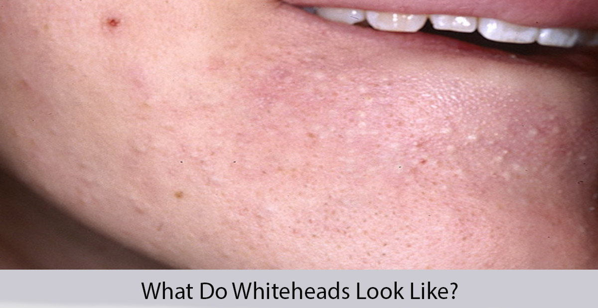 What do whiteheads look like?