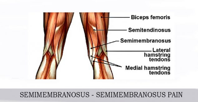 semimembranosus pain