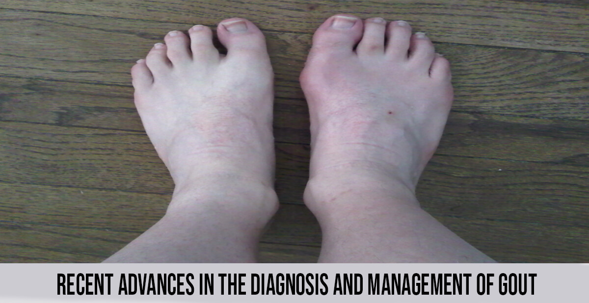 Diagnosis and Management of Gout