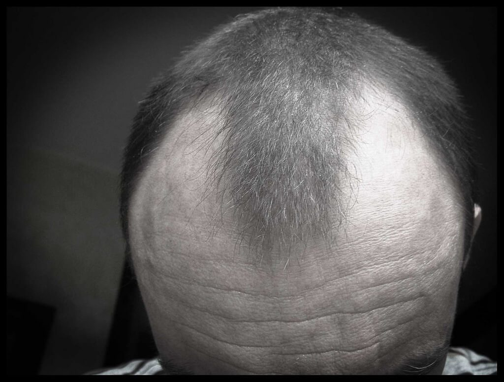How Can You Treat Hair Loss