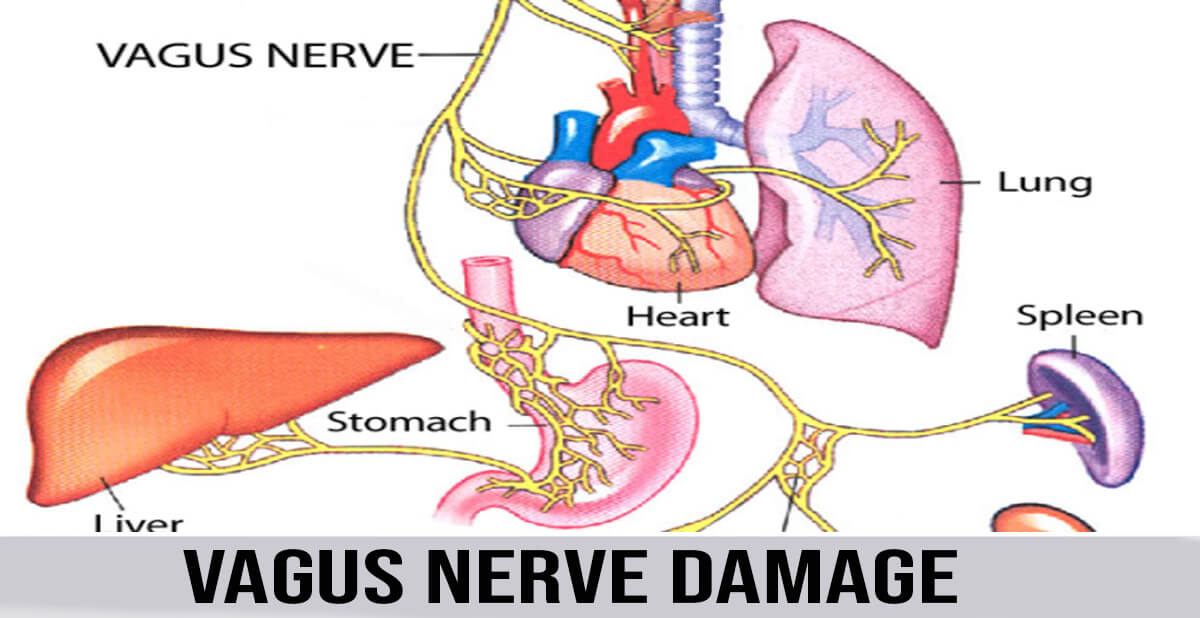 VAGUS NERVE DAMAGE