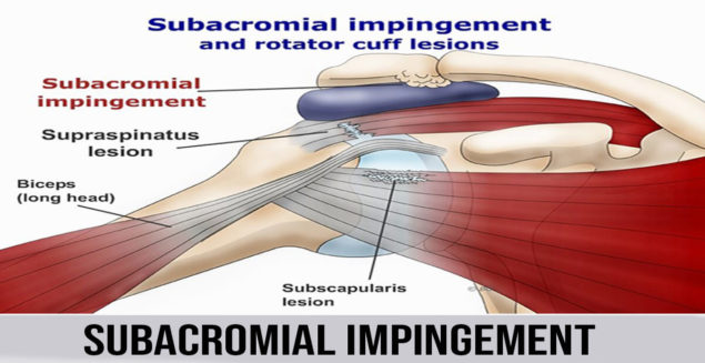 subacromial impingement  Subacromial impingement disorder (SAIS) is the most widely recognized confusion of shoulder, representing 44– 65% of all dissensions of shoulder torment amid a doctor's office visit. SAIS envelops a range of subacromial space pathologies including fractional thickness rotator sleeve tears, rotator sleeve tendinosis, calcific tendinitis, and subacromial bursitis. The primary results of SAIS are practical misfortune and disability. Subacromial space is characterized by the humeral head poorly, the foremost edge and under surface of the front third of the acromion, coracoacromial tendon and the acromioclav-icular joint superiorly. The stature of room among acromion and humeral head ranges from 1.0 to 1.5 centimeters as observed on radiographs. Mediated between these two bony structures are the rotator sleeve ligaments, the long leader of the biceps ligament, the bursa, and the coracoacromial tendon. Any variation from the norm that exasperates the relationship of these subacromial structures may prompt impingement.   The reasons for subacromial impingement   As you lift your arm, the rotator sleeve ligament goes through the subacromial space. This is a restricted path like the carpal passage in your wrist. Subacromial impingement happens when the ligament gets on the bone at the highest point of this path.   This can be caused by:  1.The bursa found between the ligament and the shoulder bone getting to be aroused and disturbed. This can be caused by one-time damage or an abuse of the shoulder   2.The ligament getting to be thickened, torn or swollen because of abuse or damage   3.Bone goads on the shoulder bone that bother the ligament   4.The bone is bended, as opposed to level, this is normally something you're conceived with, instead of something that creates after some time   What are the side effects of subacromial impingement?   Subacromial impingement can begin all of a sudden or step by step deteriorate which implies the side effects ca