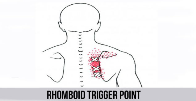 Rhomboid Trigger Point