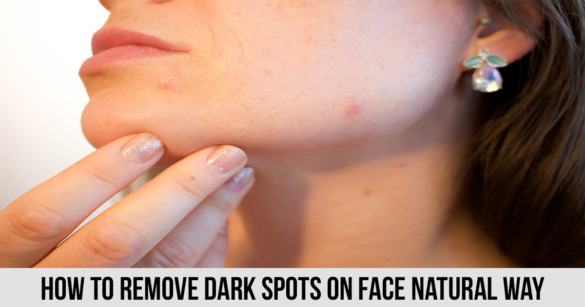 How To Remove Dark Spots On Face Natural Way