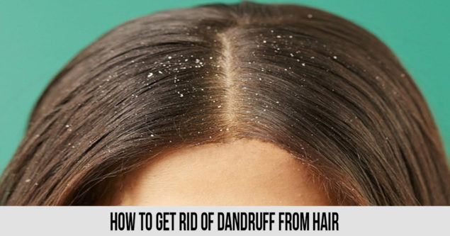 how to get rid of dandruff from hair If you are thinking aboutHow to Get Rid Of Dandruff From Hair, you are requesting nearly the unthinkable thing because everything takes time for a good result. Use this method that is given below produce a good result. 1. Coconut Oil and Lemon Massage Coconut oil supports your hair, while lemon juice treats dandruff at home without utilizing hurtful synthetic substances. Given beneath is the least demanding dandruff home cure: Stage 1: Heat 2 tablespoons of coconut oil and blend it with equivalent measures of lemon juice. Stage 2: Massage your scalp tenderly with the blend. Stage 3: Leave it on for 20 minutes before washing if off with cleanser. 2. Fenugreek Pack as a Dandruff Remedy This home solution for dandruff utilizes fenugreek seeds. Stage 1: Drain the remaining water and squash the mollified seeds into a glue. Stage 2: Let the sit for around 70 minutes. Stage 3: wash it off with a gentle cleanser. 3. Curd Treating dandruff at home with curd is somewhat untidy yet exceptionally compelling. Technique for utilizing curd as a home solution for dandruff is given beneath: Stage 1: Apply some curd to your hair and all around Stage 2: Let it sit tight for around 90 minutes. Stage 3: clean it off with a cleanser that is gentle. 4. Preparing Soda is an incredible home solution for dandruff Dandruff treatment can be completed at home with preparing soft drink also. The solution for utilize heating soft drink for dandruff treatment is given beneath: Stage 1: Wet your hair somewhat. Stage 2: Keeping your hair wet, rub a spoonful of preparing soft drink on your scalp. Stage 3: Leave it on for 90-120 seconds before washing it 5. Tea Tree Oil Stage 1: Pour a couple of drops of tea tree oil on your scalp and spread it equitably. Stage 2: Let it douse for 5 minutes. Stage 3: Wash it off with a mellow cleanser. 6.How To Use Apple Cider Vinegar To Cure Dandruff Apple juice vinegar is a standout amongst the best home solutions for dandruff an