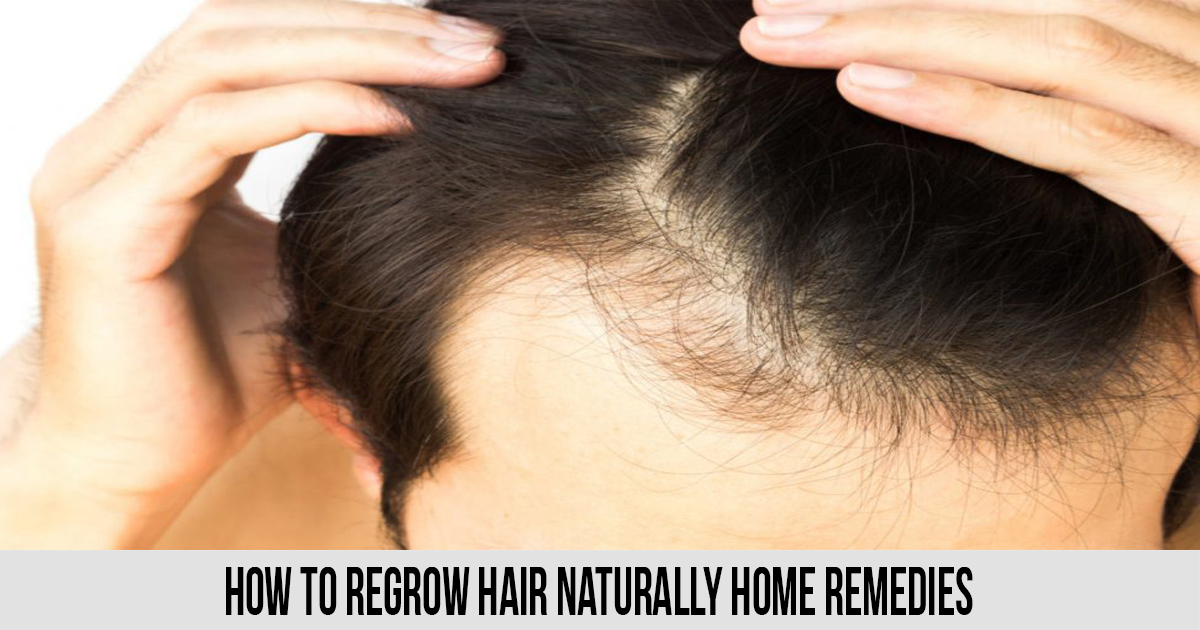 how to regrow hair naturally home remedies