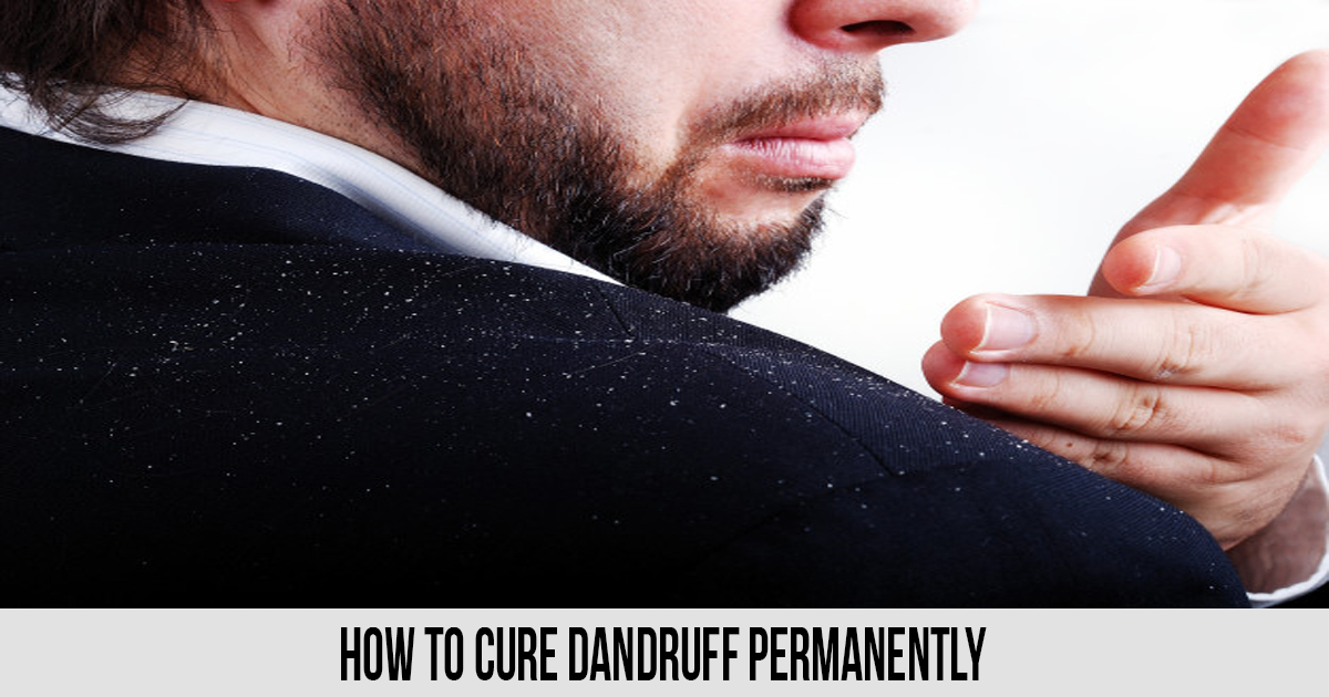 How To Cure Dandruff Permanently