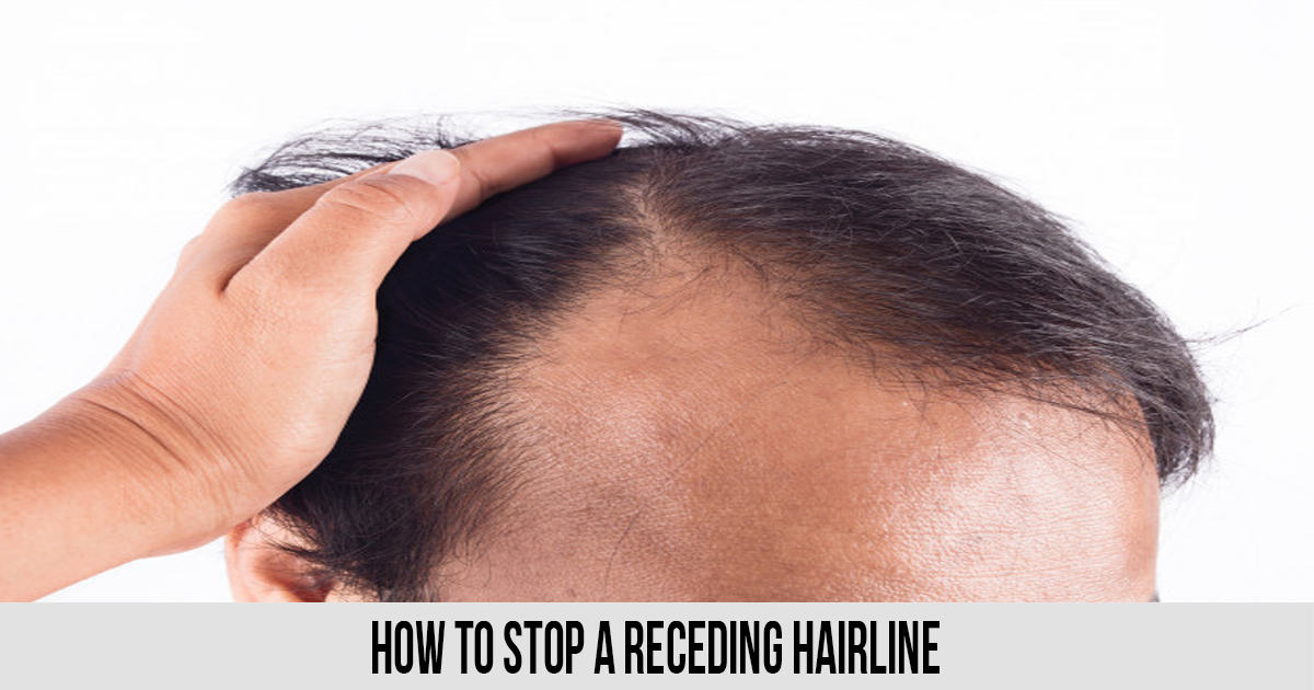 How To Stop A Receding Hairline
