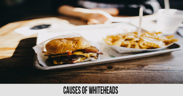 causes whiteheads