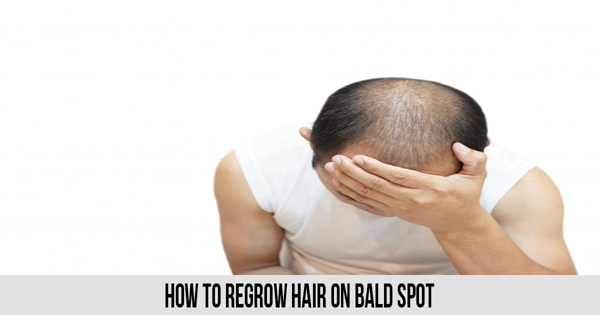 How to Regrow Hair on Bald Spot