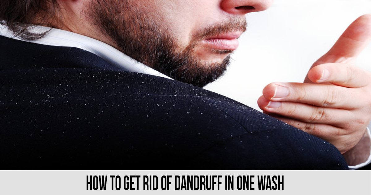 How to Get Rid of Dandruff in One Wash